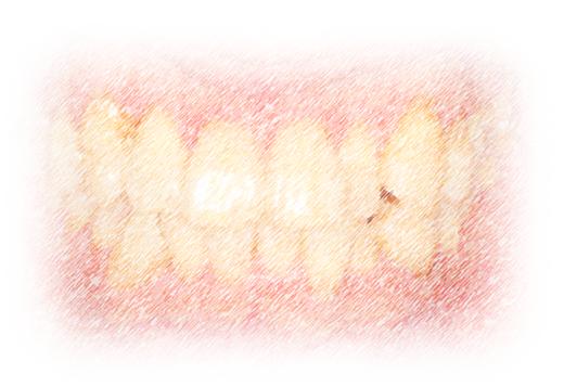 【体験記③ DAY -18】矯正開始前の歯石取り
