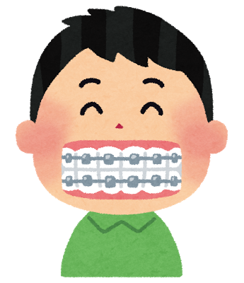 【体験記⑯ ~DAY260】調整12、13回目 歯の隙間がくっつきました