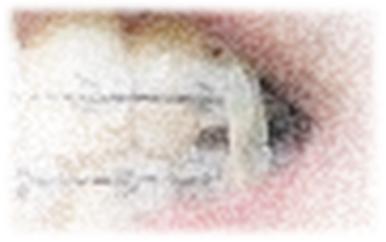 【体験記⑱ ~DAY300】調整15回目 極太の顎間ゴムに